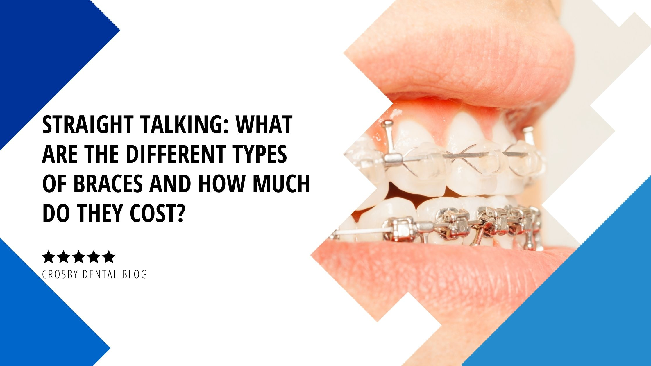 Straight Talking: What Are the Different Types of Braces ...
