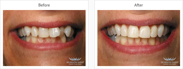 six-month smiles case 4